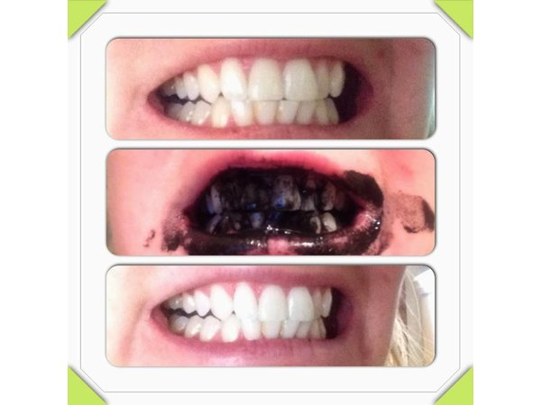 Invitamin charcoal teeth whitening poeder Cinnamint
