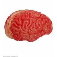 Widmann Bloederige Hersenen