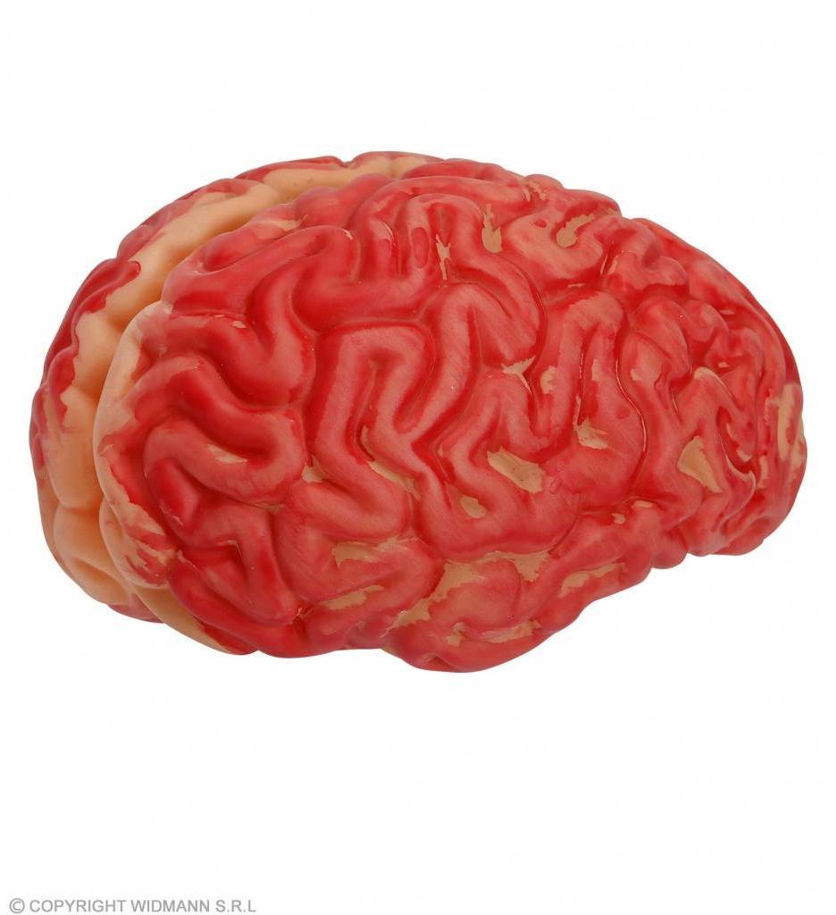 Bloederige Hersenen