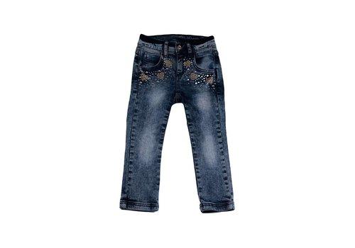 Twinset Twinset Jeansbroek Met Parels