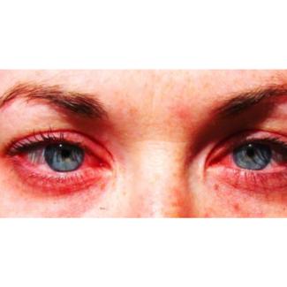 Allergiescreening inhalatiemix