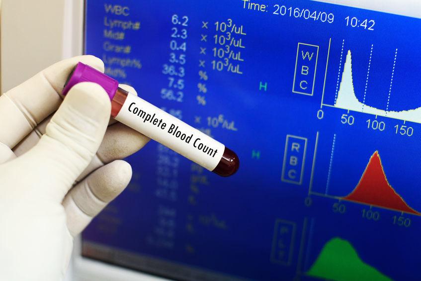 3 belangrijke vormen van bloedonderzoek