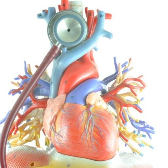 geoxideerd LDL Cholesterol
