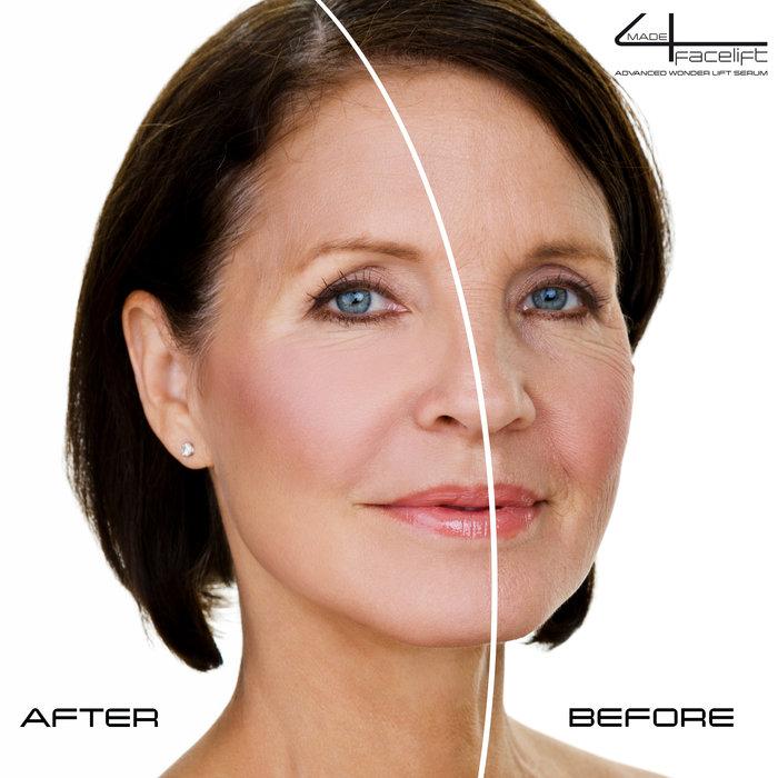 Geschenk Tipp Anti-Falten-Set mit made4filler Instant Filler Gesichtscreme Geschenk