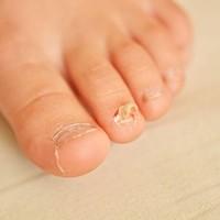 Kalknagels en voetschimmel