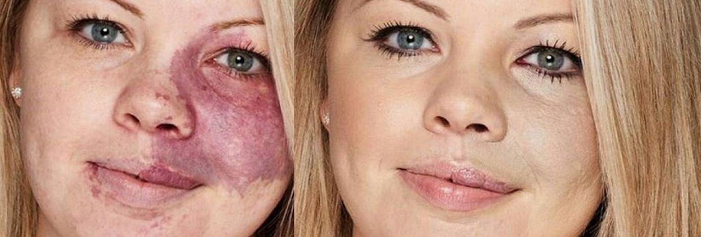 Hoe camoufleer je een wijnvlek op je huid?