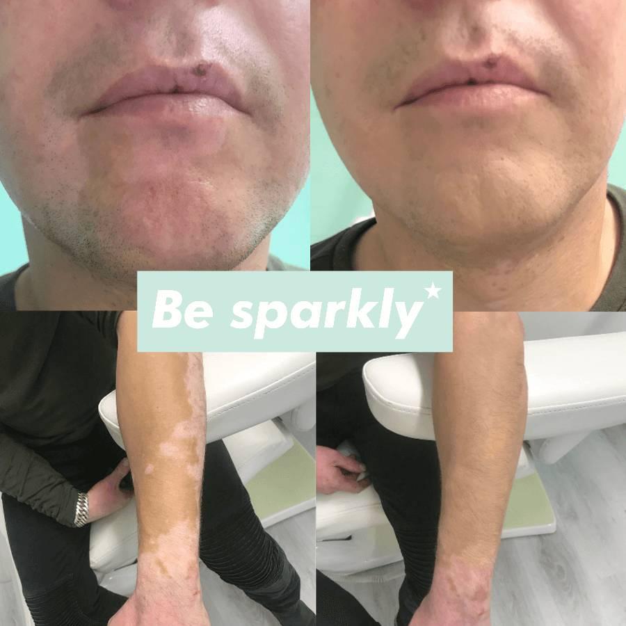 Hoe camoufleer je vitiligo?