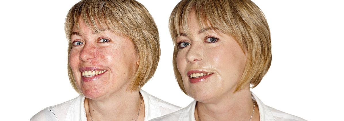Littekens verwijderen met speciale litteken crème?