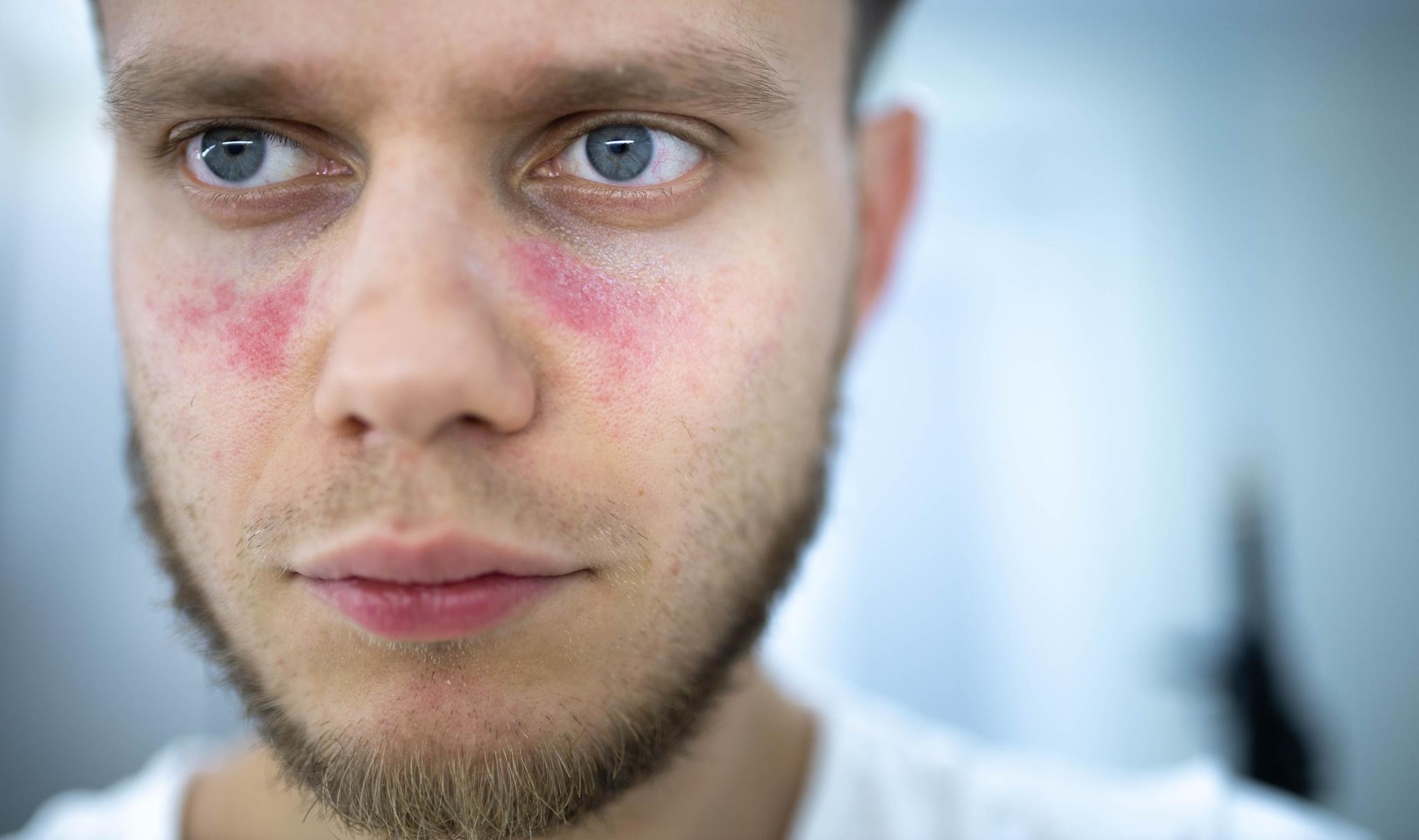 Contactallergie (in het gezicht): oorzaken en symptomen