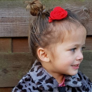 Your Little Miss Rote Haarspang mit Filzblume