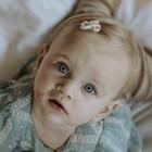 Baby Haarspangen