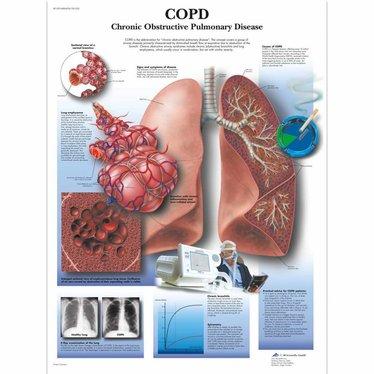 3B Scientific Poster COPD
