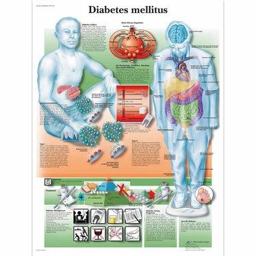 3B Scientific Poster Diabetes Mellitus