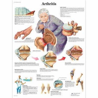 3B Scientific Poster Arthritis