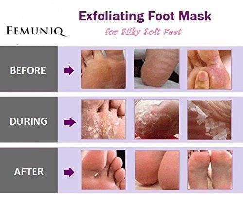 Baby Foot Peeling