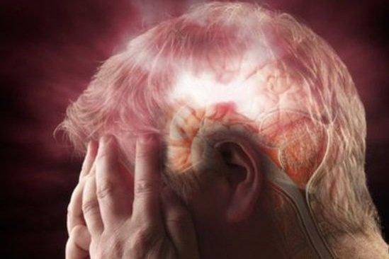 Stroke / Cerebral Hemorrhage