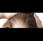 Shampoo voor Dunner Wordend Haar