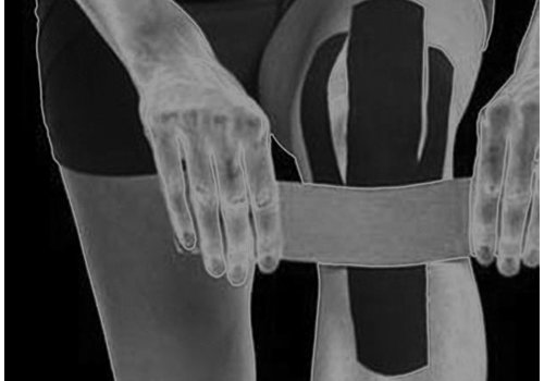 Physio KINESIOLOGY TAPING AND TAPING
