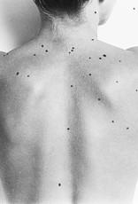 Karel Fonteyne - Limited Edition - Blind Spots