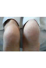 Footlogix Very Dry Skin Formula 125 ml
