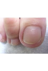 Footlogix Toe Nail Tincture 50 ml