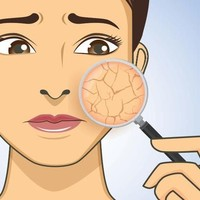 Skincareroutine voor de droge huid
