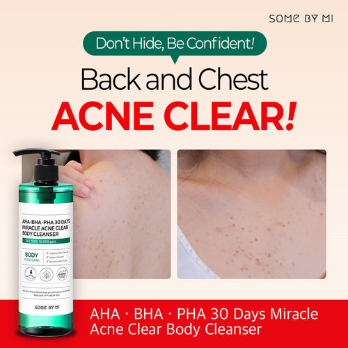 Some By Mi AHA.BHA.PHA 30 Days Miracle Acne Clear Body Cleanser