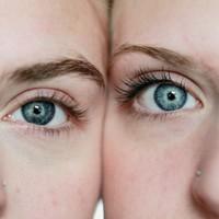 Waarom zonnebrandcrème helpt tegen acne
