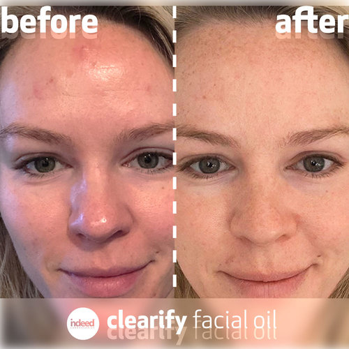 Indeed Labs Clearify Facial Oil