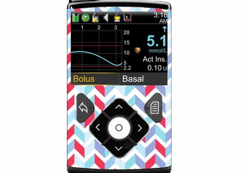 ZIGZAG - Screen Protector- Medtronic Minimed 640G