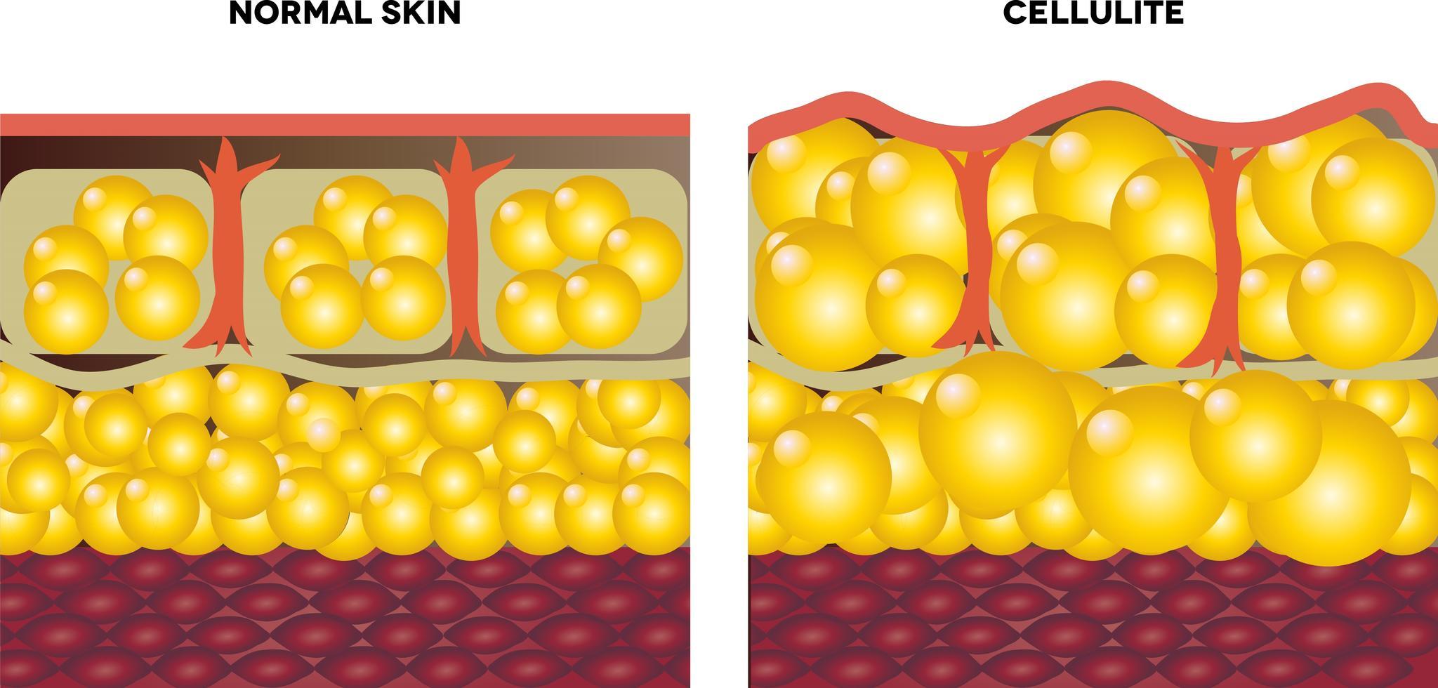 uitleg cellulitis