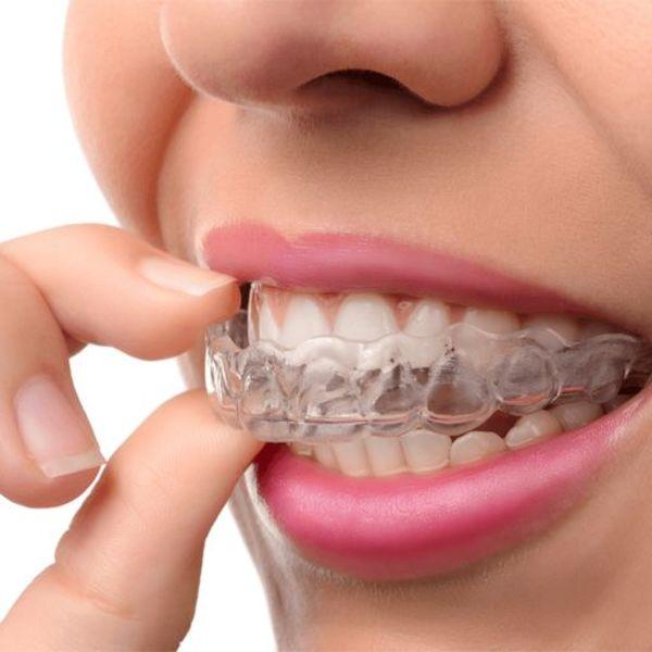 Oscimed  Sanabrux orthèse ou gouttière  dentaire pour protéger vos dents contre les effets du bruxisme ou du grincement des dents