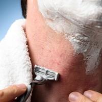 Tips tegen jeuk en bultjes na het scheren