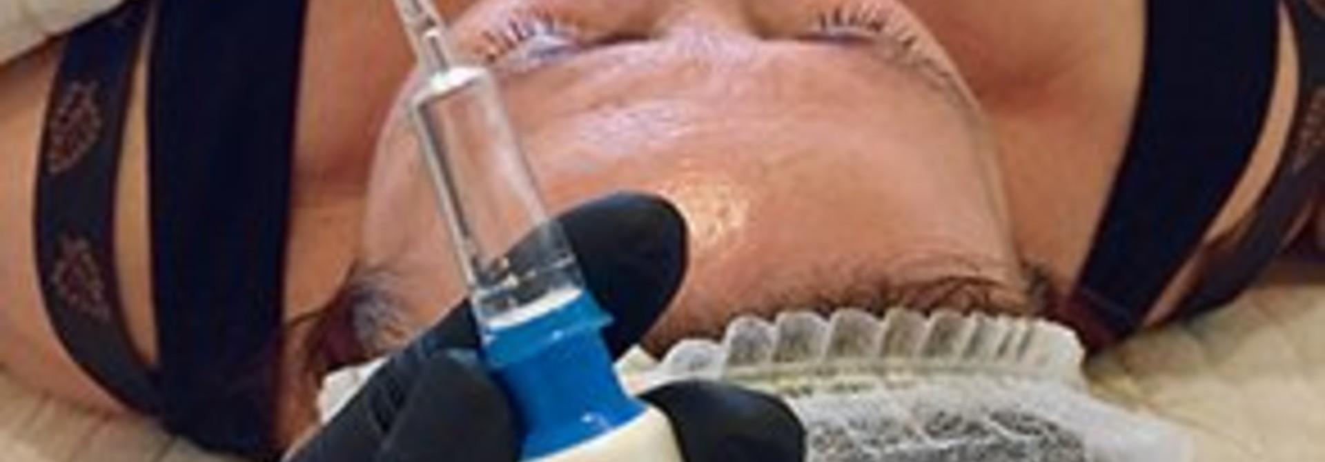 NIEUW @ SOULSOUP Skin Resurfacing Treatment