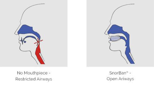 Diagram met het verschil in ademhaling door de luchtwegen met en zonder het SnorBan snurkbeugel