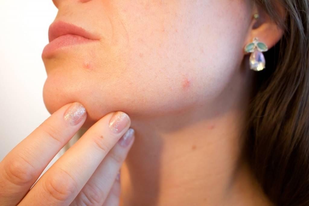 Acne - wat je wel en niet moet doen bij zo'n huid!