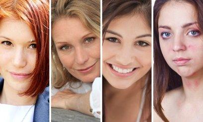 Indemne bij acne en huidirritatie