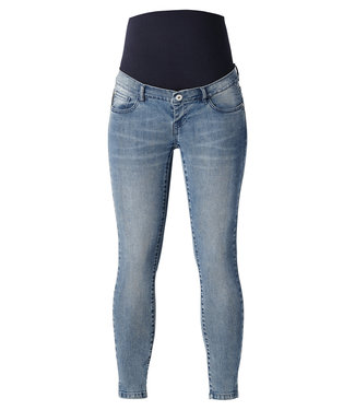 Supermom Skinny Jeans Acid Blue