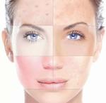 Wat is het verschil tussen huidtypes en huidcondities?