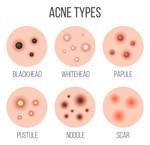 Welke soorten acne zijn er?