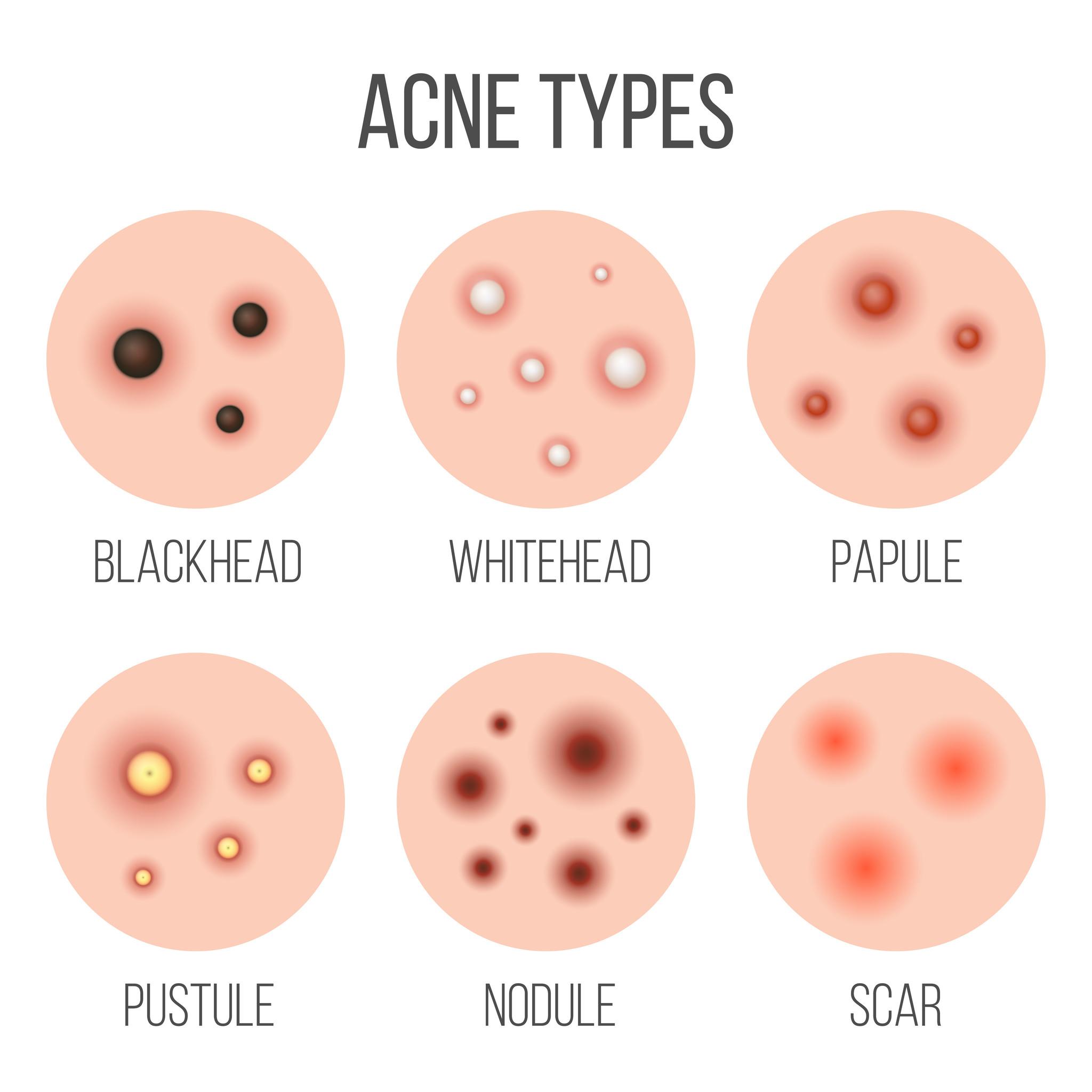 Welke soorten acne zijn er.jpg