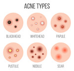 Do's & Do'nts bij acne