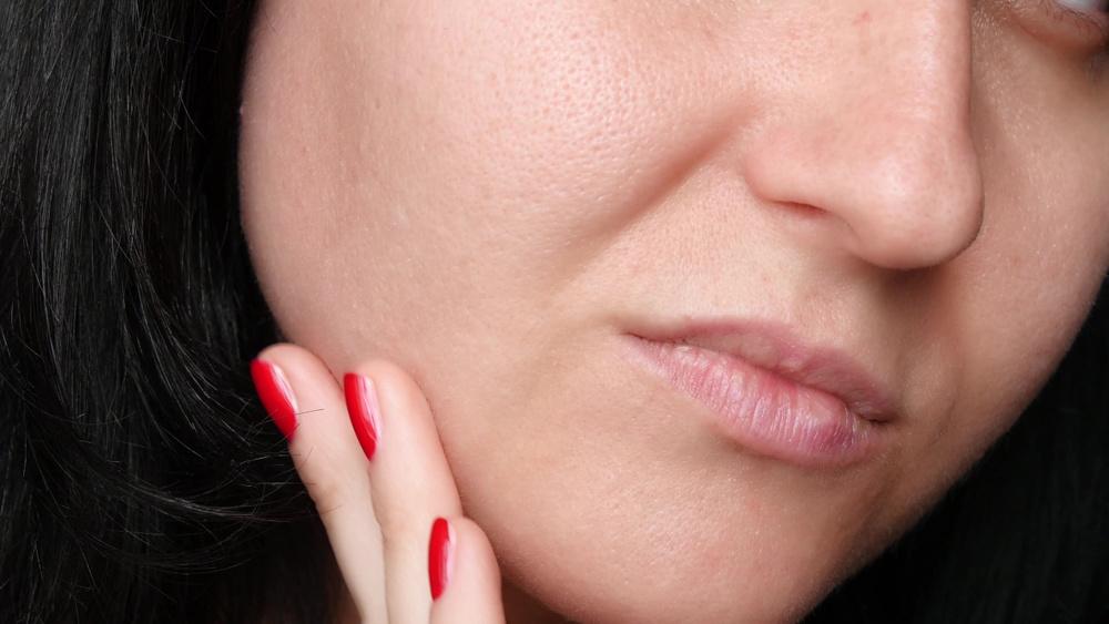 Hoe verzorg je acne?