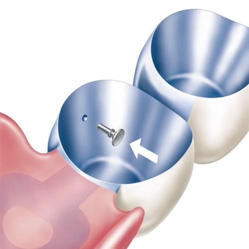 Servo Dental 9880 - Tele-Fit Friktionssystem
