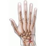 TFCC Injury (Triangular Fibro Cartilaginous Complex)
