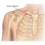 Broken collarbone - collarbone fracture