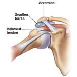 Slijmbeursontsteking schouderbrace