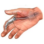 Treating Dupuytren's contracture?