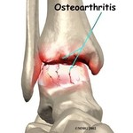Osteoarthritis of the ankle