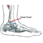 Tarsal tunnel syndrome ankle